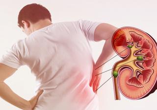 Sỏi thận: Nguyên nhân, triệu chứng, chẩn đoán, chữa trị và cách phòng bệnh