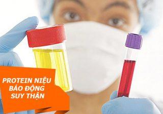Protein niệu (đạm niệu) là gì? Nguyên nhân, triệu chứng và điều trị