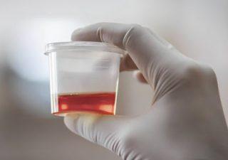 Tiểu ra máu là gì? Nguyên nhân, triệu chứng và cách điều trị tận gốc