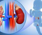 Hội chứng thận hư ở trẻ em: Nguyên nhân và cách điều trị hiệu quả