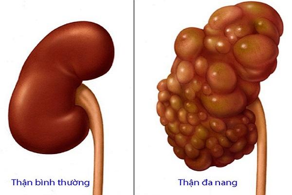 than-da-nang-1