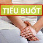 Tiểu buốt là bệnh gì? Nguyên nhân, triệu chứng và điều trị dứt điểm