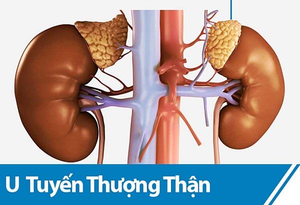 u-tuyen-thuong-than-1