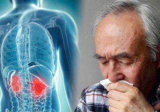 Ung thư thận: Nguyên nhân, triệu chứng và hỗ trợ điều trị